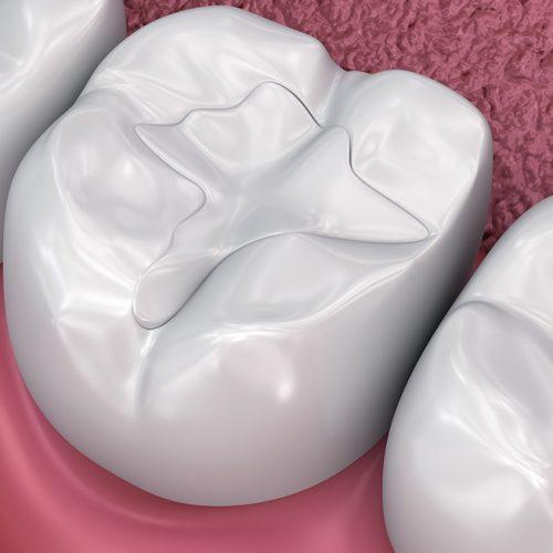Dental Filling Procedures