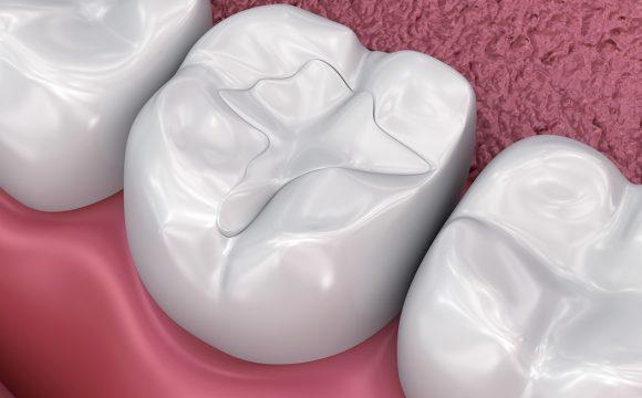 Diş Dolgu Uygulamaları