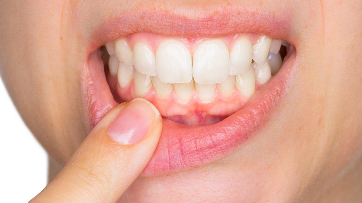 Diş Eti Hastalıkları Tanı ve Tedavileri