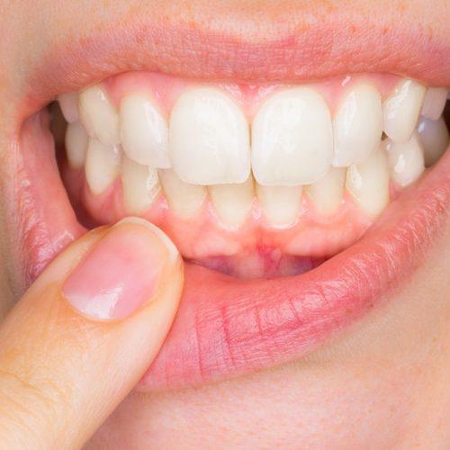 Zahnfleischkrankheiten Diagnose und Behandlungen