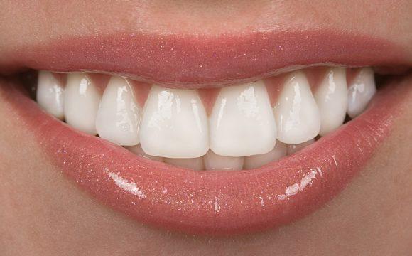 Gummy Smile Tedavisi