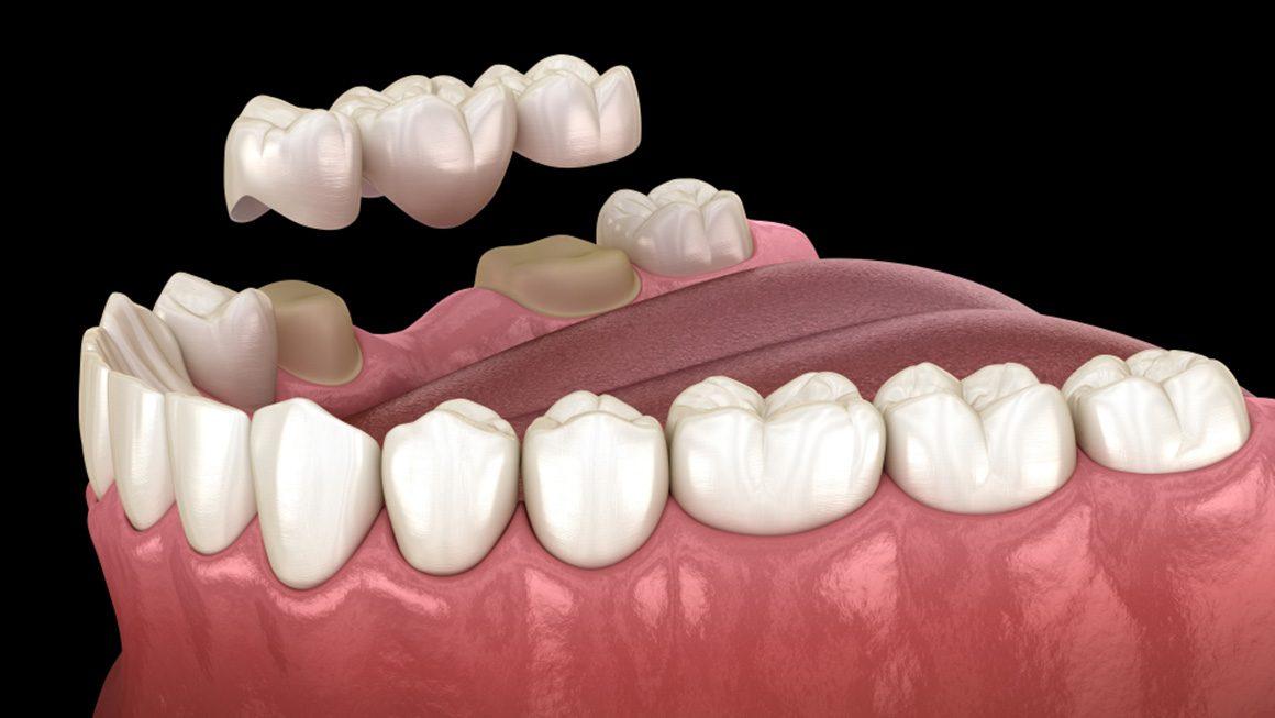 Köprü Diş Uygulaması