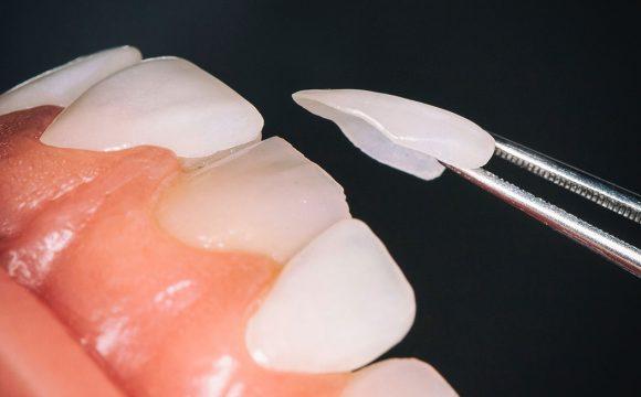 Lamine Diş Uygulaması